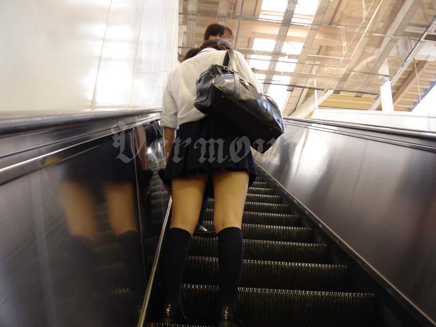【美脚エロ画像】ああっ綺麗な脚に一体何が…他人でも心配してしまう痣や手当てのある女脚 ω・`)